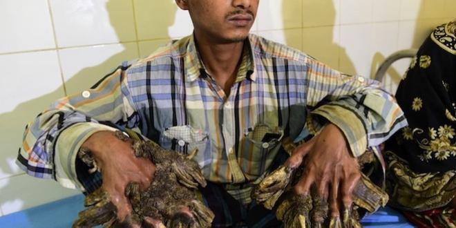 homme_arbre_bangladesh