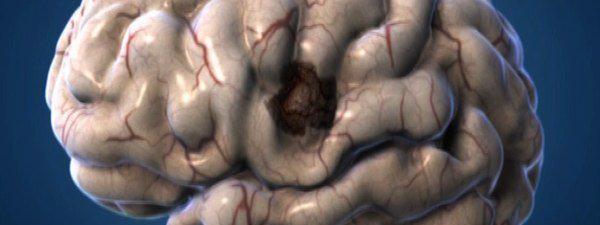 Découverte de 30 petits neurones qui endorment ladouleur