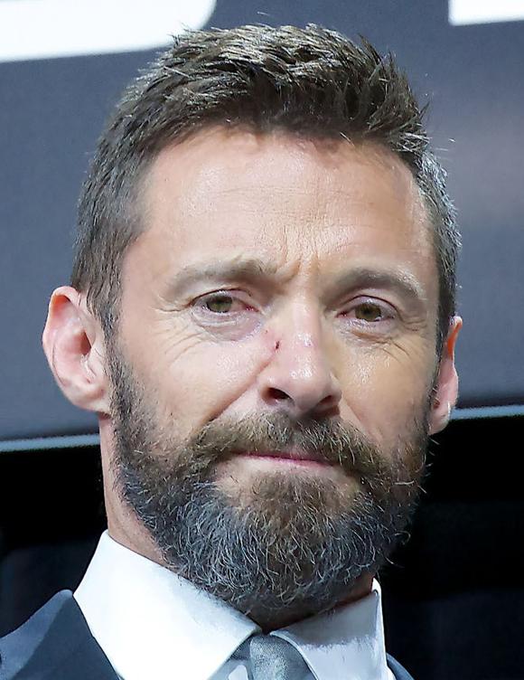 Le cancer de la peau c'est courant, Hugh Jackman… parle de ses cancers… protégez vous …<3 <3<3